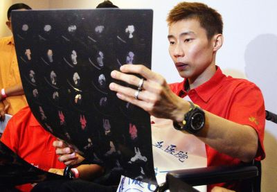Painful experience: Chong Wei looking at an X-ray image of his torn tendon.