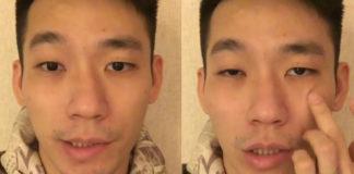Chan Peng Soon reveals he has Bell's Palsy. (photo: Chan Peng Soon's Facebook)