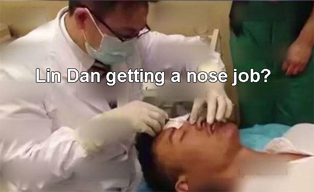 Lin Dan gets a nose job.