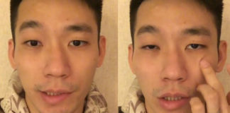Chan Peng Soon reveals he has Bell's Palsy. (photo: Chan Peng Soon's Facebook)