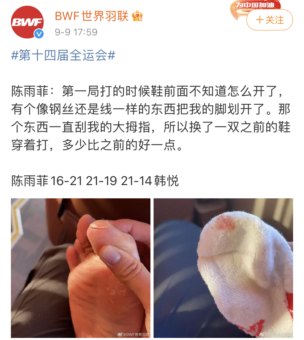 BWF posted Chen Yufei's right toe injury on its Chinese social media page. (photo: Sina)